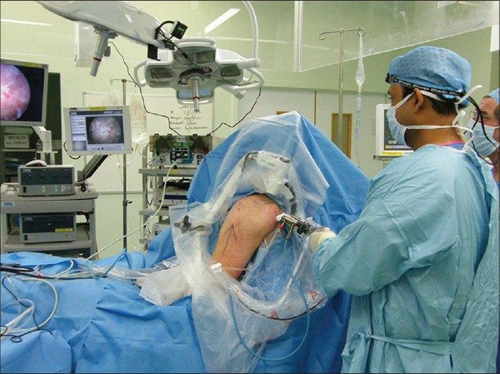 جراح شانه